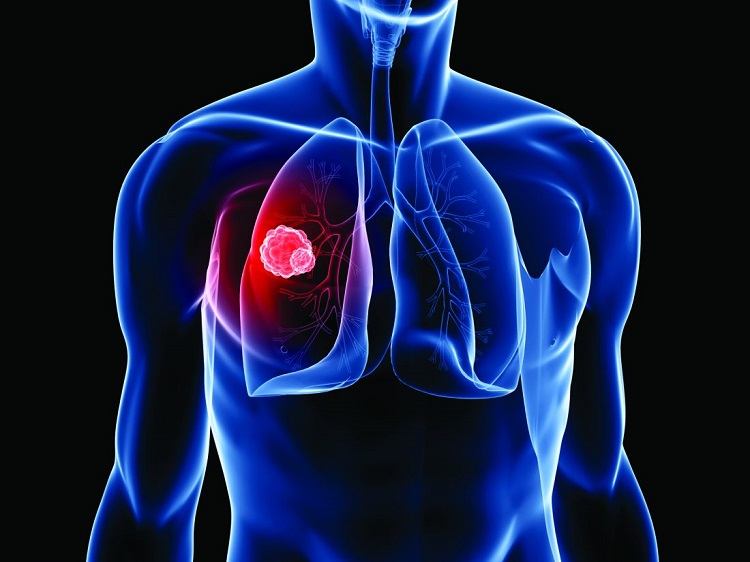 Ceritinib Powder To Propose An Effective Relief From NSCLC